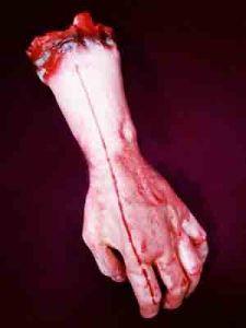 Рука отрезанная